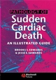 Pathology of Sudden Cardiac Death: An Illustrated Guide (1405122129) cover image