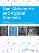 Non-Alzheimer's and Atypical Dementia (144433624X) cover image