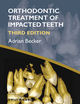 Orthodontic Treatment of Impacted Teeth, 3rd Edition (1444336754) cover image