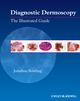 Diagnostic Dermoscopy: The Illustrated Guide (1405198559) cover image