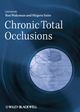 Chronic Total Occlusions: A Guide to Recanalization (1444357263) cover image