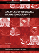 An Atlas of Neonatal Brain Sonography, 2nd Edition (1898683565) cover image