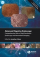 Comprehensive Atlas of High Resolution Endoscopy and Narrowband Imaging (1405158867) cover image