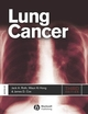 Lung Cancer, 3rd Edition (1444358669) cover image