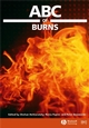 ABC of Burns (0727917870) cover image