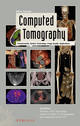 Computed Tomography: Fundamentals, System Technology, Image Quality, Applications, 3rd Edition (389578317X) cover image