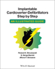 Implantable Cardioverter - Defibrillators Step by Step: An Illustrated Guide (1405186380) cover image