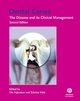 Dental Caries: The Disease and Its Clinical Management, 2nd Edition (1405138890) cover image