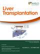 Liver Transplantation (LT) cover image